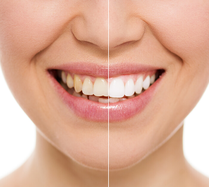 Westend Dental offers a variety of teeth whitening treatments.