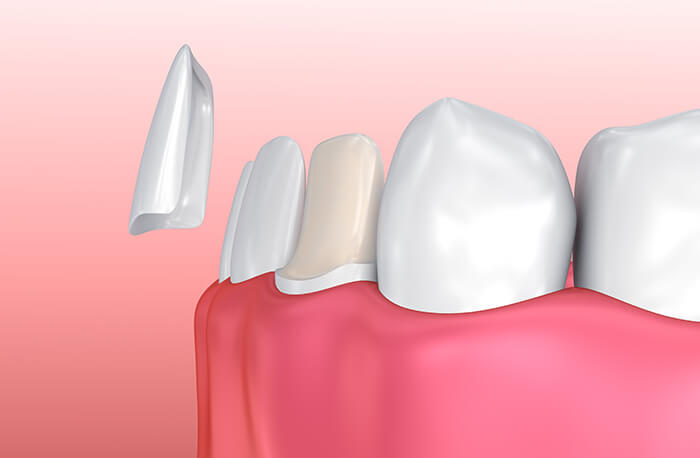 Lumineers are a great alternative to traditional cosmetic veneers.